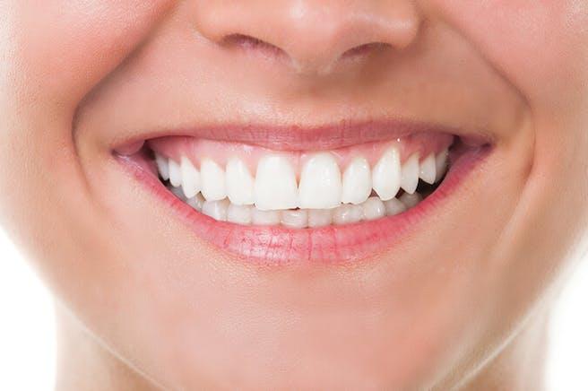 Hampaiden valkaisu Testivoittaja